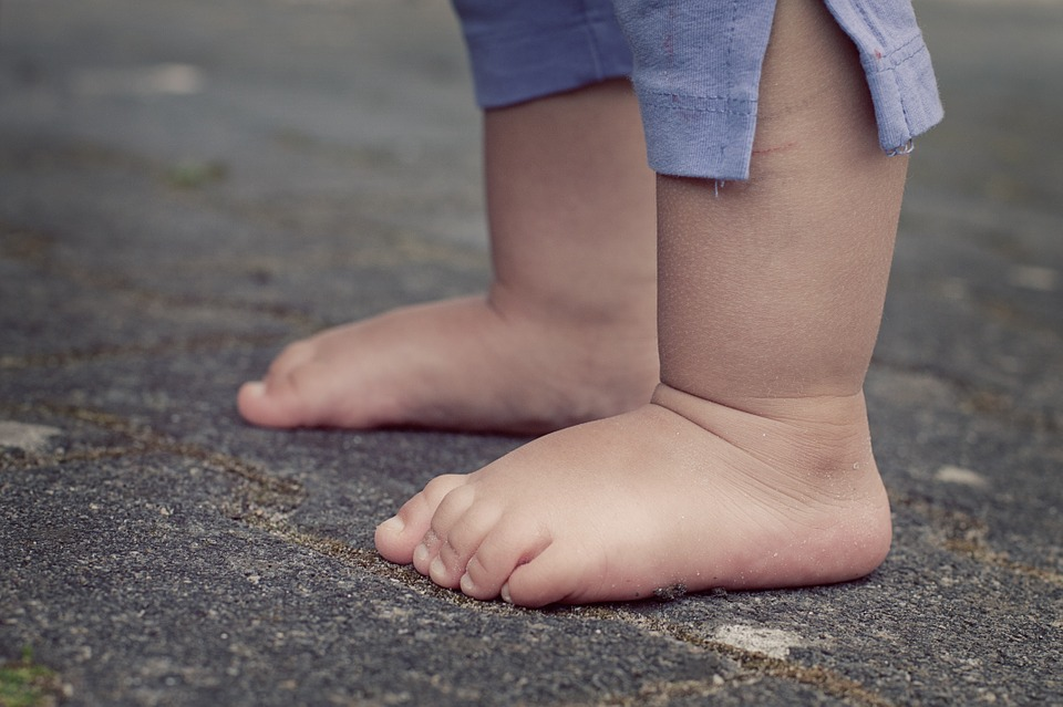 Детское плоскостопие